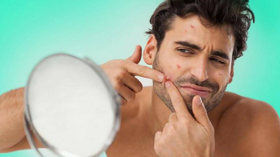 How To Pop A Pimple The Right Way Without Getting Marks On Face