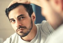 Ways To Rock Your Receding Hairline To Its Full Potential