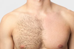 man with body hair