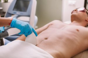 laser permanent hair removal for men